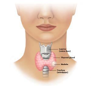 """קשריות בבלוטת התריס - תסמינים, אבחון בבדיקת ניקור FNA וטיפול בקשריות - ד""""ר איריס יעיש"""